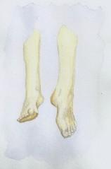 Restless Legs 4
